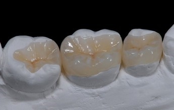 Phương pháp tái tạo chức năng nhai của hàm răng