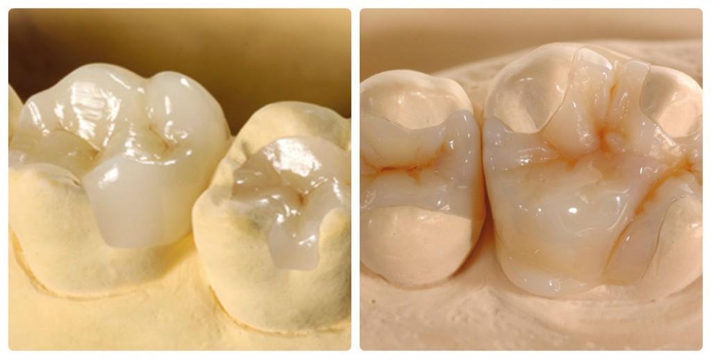 Phương pháp trám răng tăng tính thẩm mỹ cho hàm răng