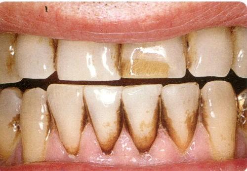 Răng bị stain bám (sau điều trị nha khoa – tẩy trắng răng)